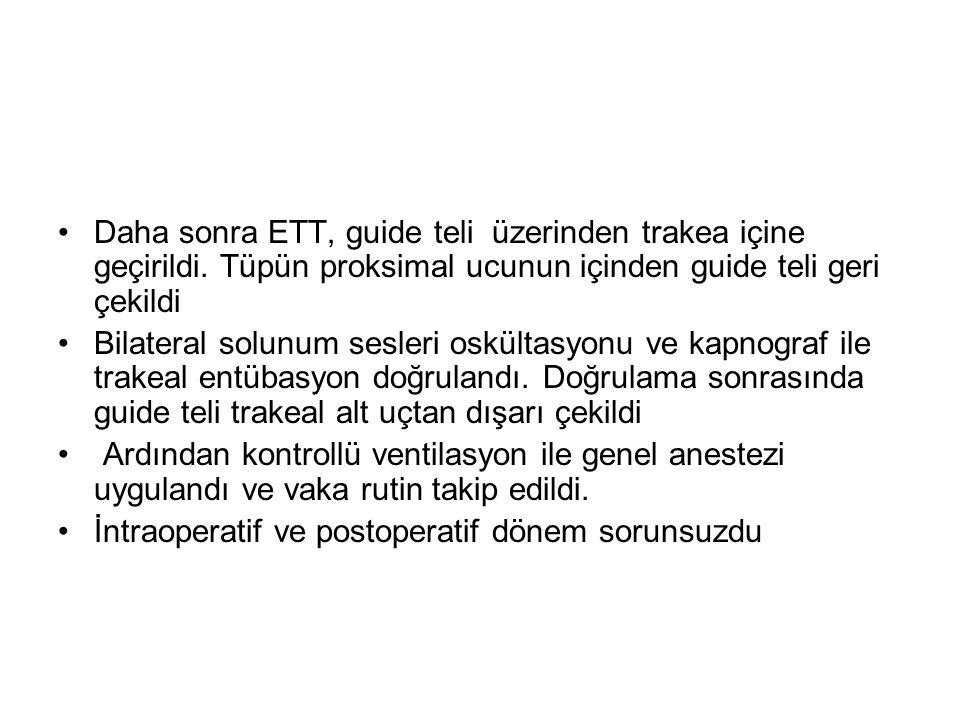 Daha sonra ETT, guide teli üzerinden trakea içine geçirildi
