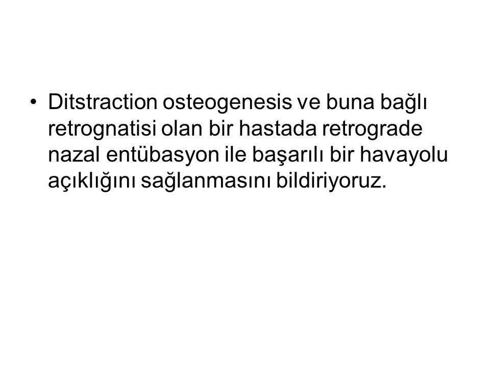 Ditstraction osteogenesis ve buna bağlı retrognatisi olan bir hastada retrograde nazal entübasyon ile başarılı bir havayolu açıklığını sağlanmasını bildiriyoruz.