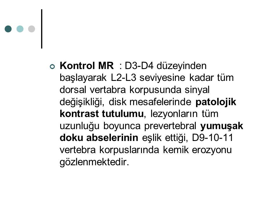 Kontrol MR : D3-D4 düzeyinden başlayarak L2-L3 seviyesine kadar tüm dorsal vertabra korpusunda sinyal değişikliği, disk mesafelerinde patolojik kontrast tutulumu, lezyonların tüm uzunluğu boyunca prevertebral yumuşak doku abselerinin eşlik ettiği, D9-10-11 vertebra korpuslarında kemik erozyonu gözlenmektedir.
