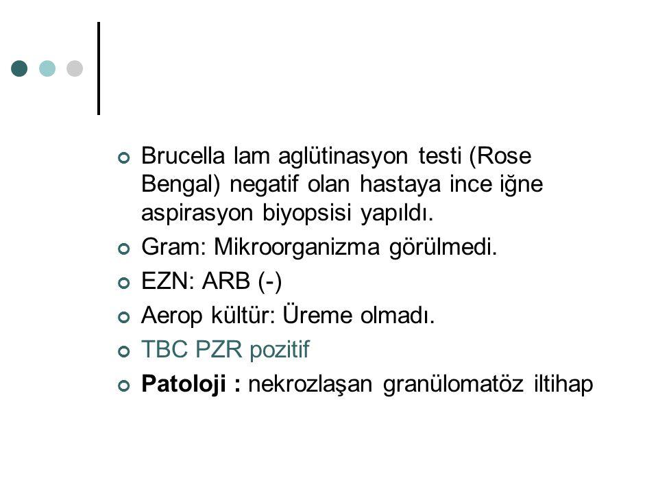 Brucella lam aglütinasyon testi (Rose Bengal) negatif olan hastaya ince iğne aspirasyon biyopsisi yapıldı.