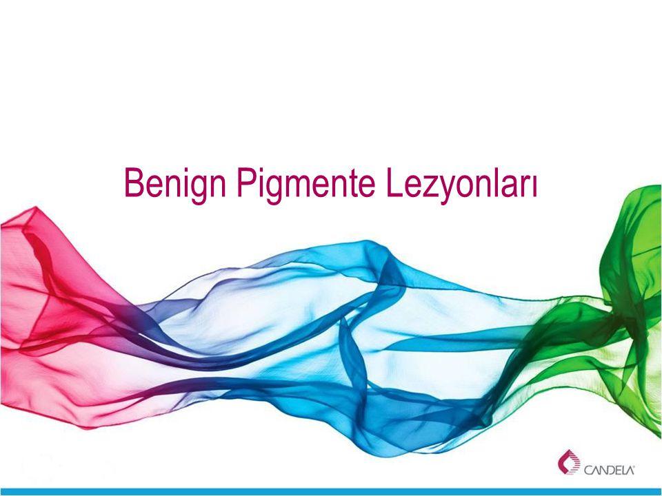 Benign Pigmente Lezyonları