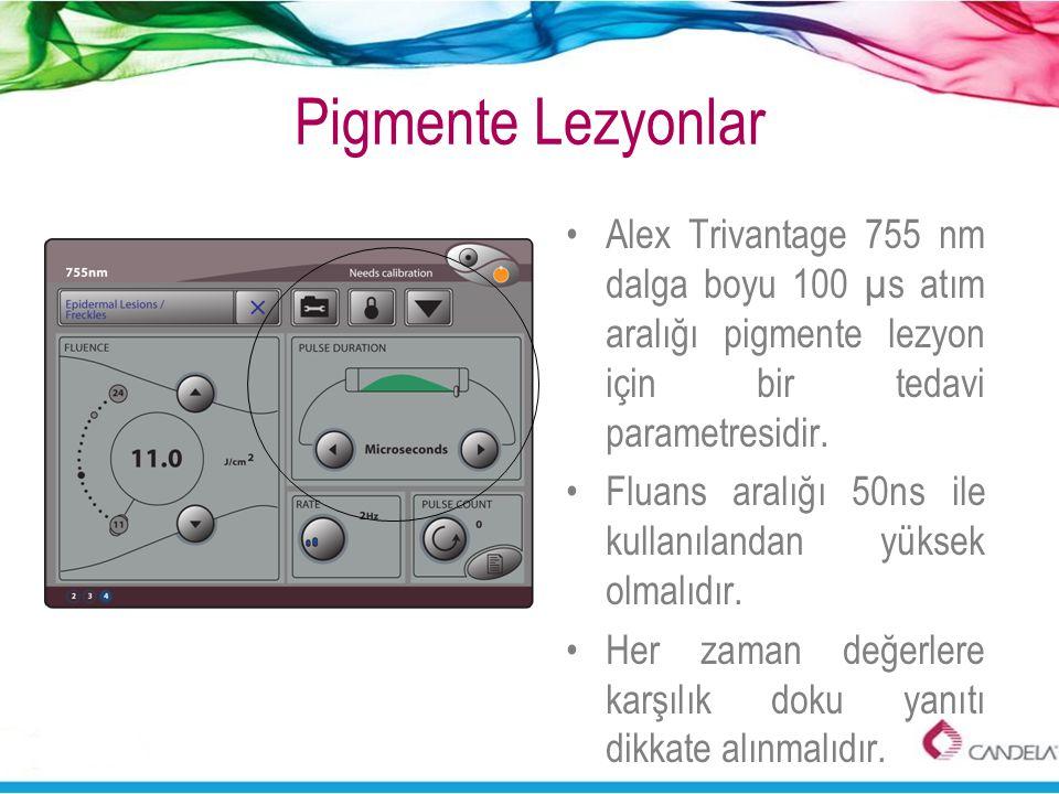 Pigmente Lezyonlar Alex Trivantage 755 nm dalga boyu 100 µs atım aralığı pigmente lezyon için bir tedavi parametresidir.