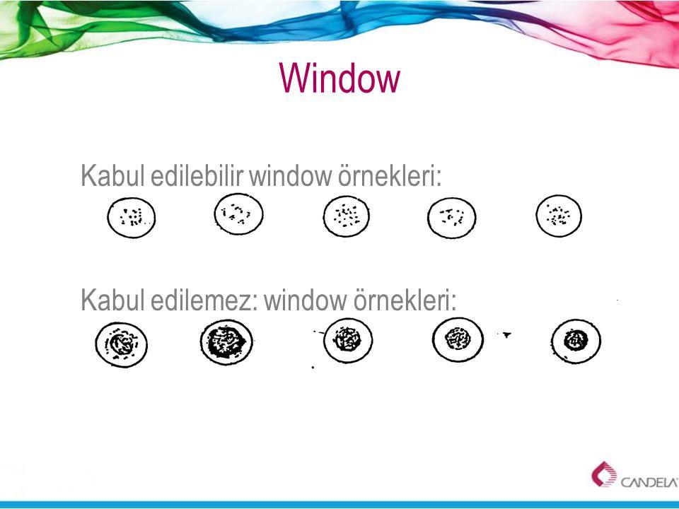 Window Kabul edilebilir window örnekleri: