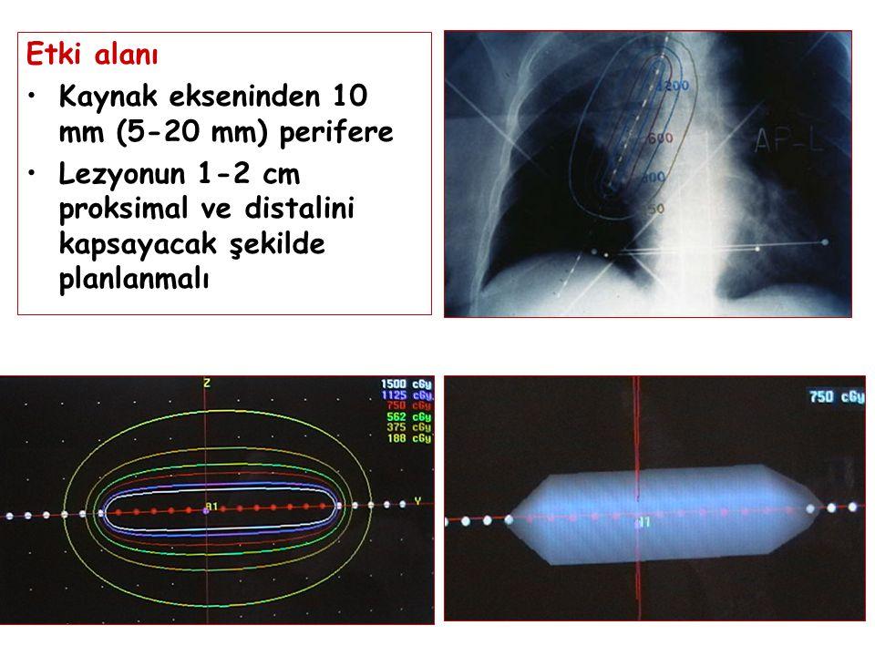 Etki alanı Kaynak ekseninden 10 mm (5-20 mm) perifere.