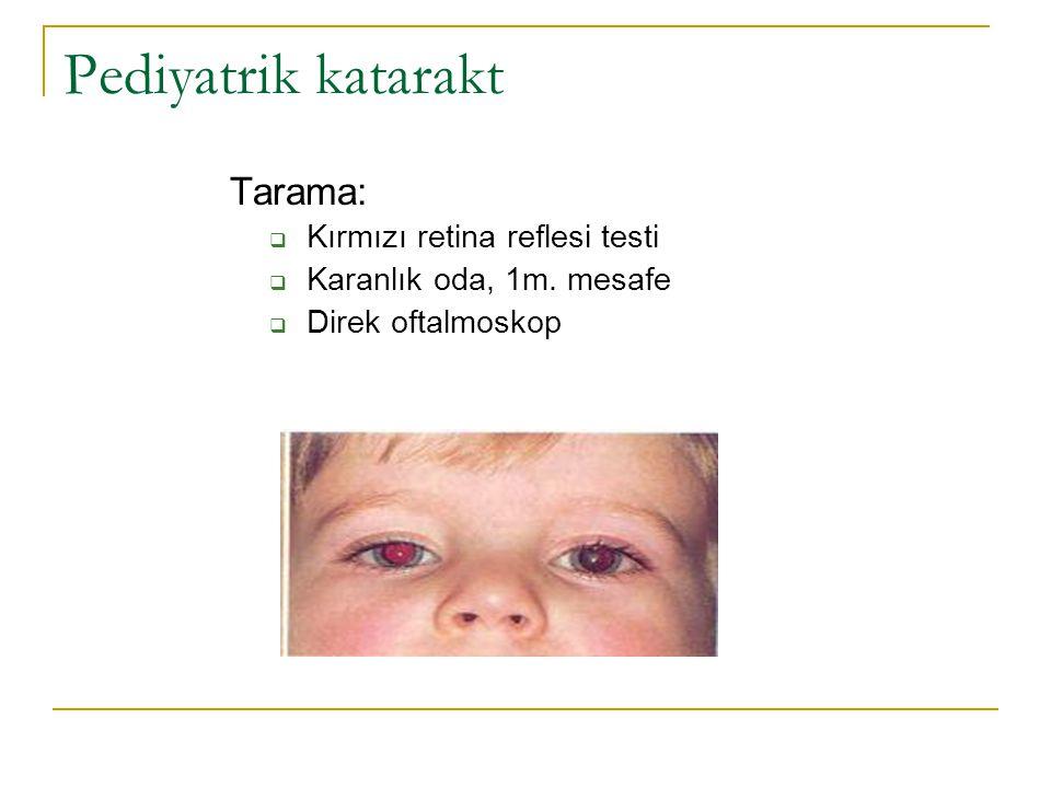 Pediyatrik katarakt Tarama: Kırmızı retina reflesi testi