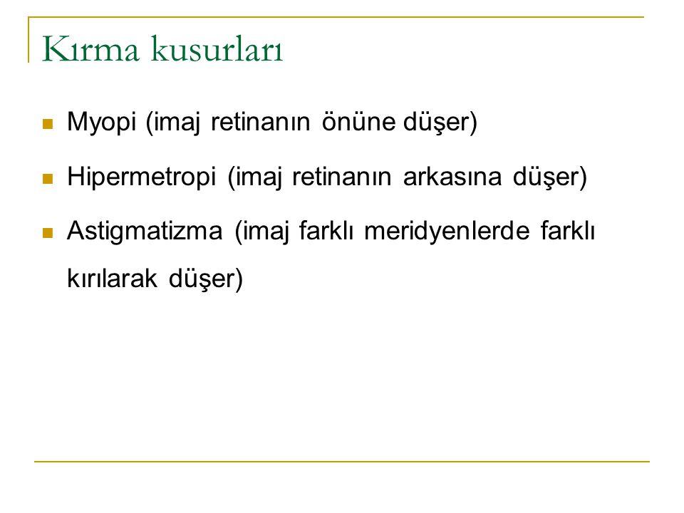 Kırma kusurları Myopi (imaj retinanın önüne düşer)