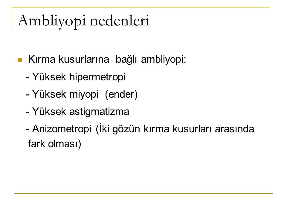 Ambliyopi nedenleri Kırma kusurlarına bağlı ambliyopi: