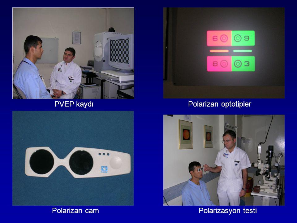 PVEP kaydı Polarizan optotipler Polarizan cam Polarizasyon testi