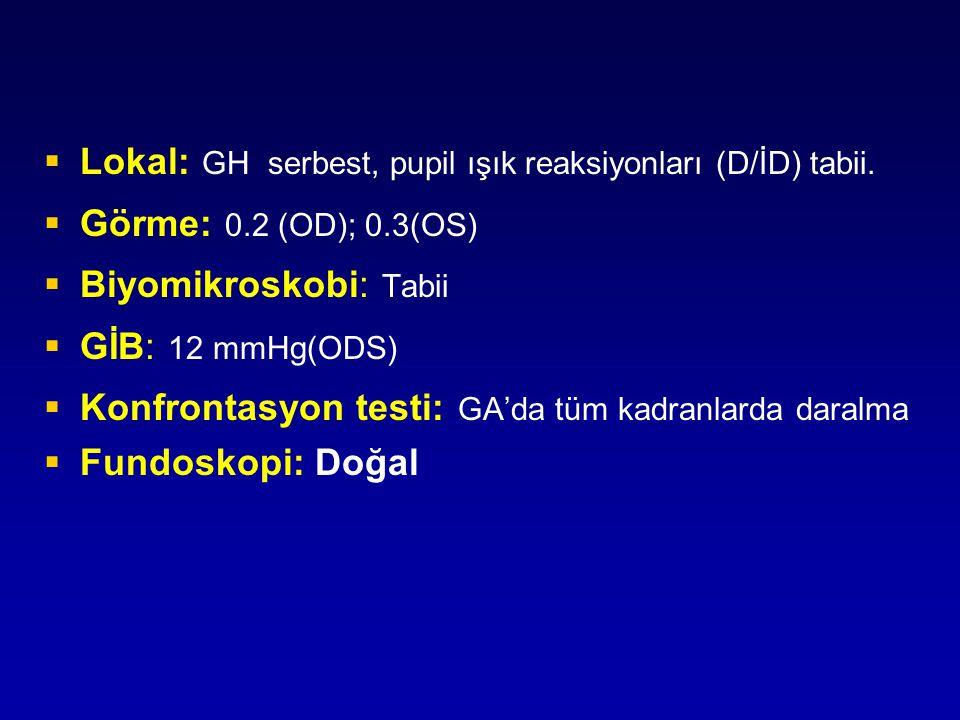 Lokal: GH serbest, pupil ışık reaksiyonları (D/İD) tabii.