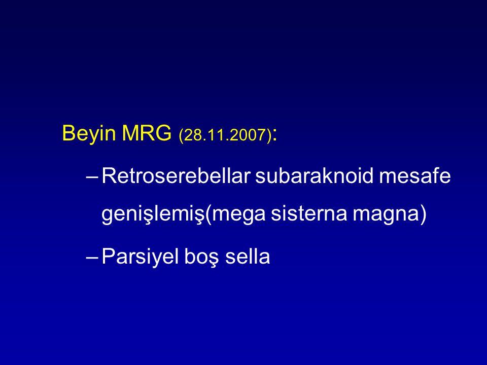 Beyin MRG (28.11.2007): Retroserebellar subaraknoid mesafe genişlemiş(mega sisterna magna) Parsiyel boş sella.
