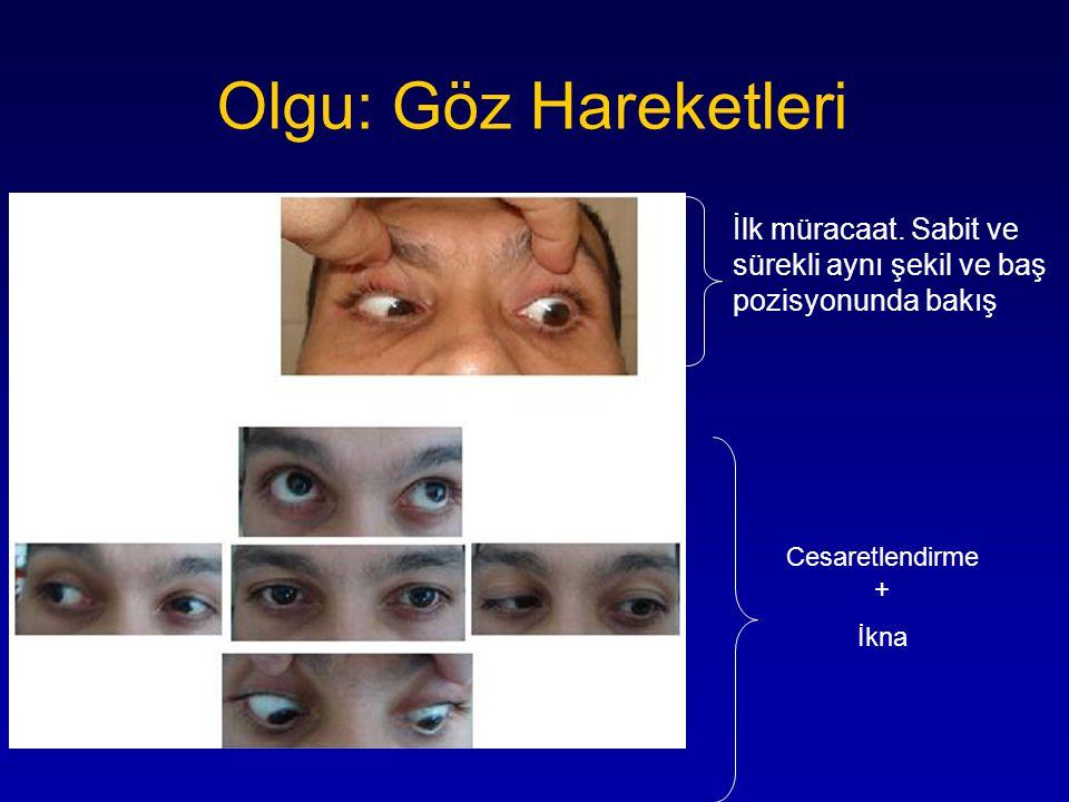 Olgu: Göz Hareketleri İlk müracaat. Sabit ve sürekli aynı şekil ve baş pozisyonunda bakış. Cesaretlendirme +