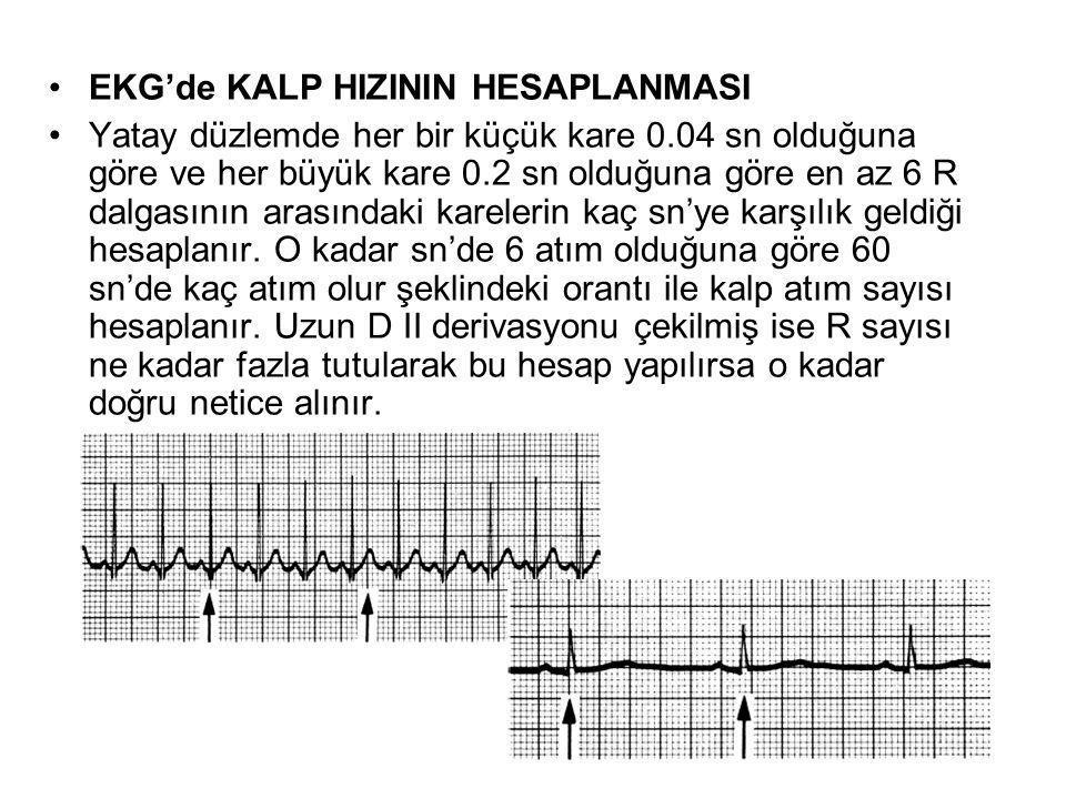 EKG'de KALP HIZININ HESAPLANMASI