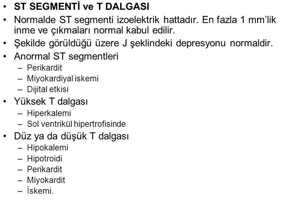 ST SEGMENTİ ve T DALGASI