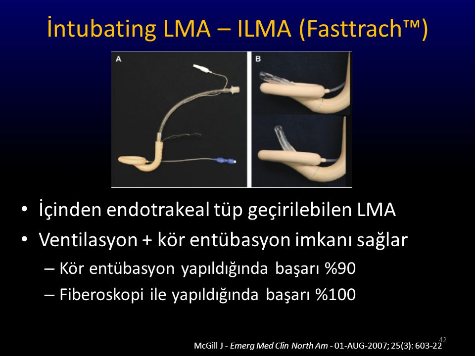 İntubating LMA – ILMA (Fasttrach™)