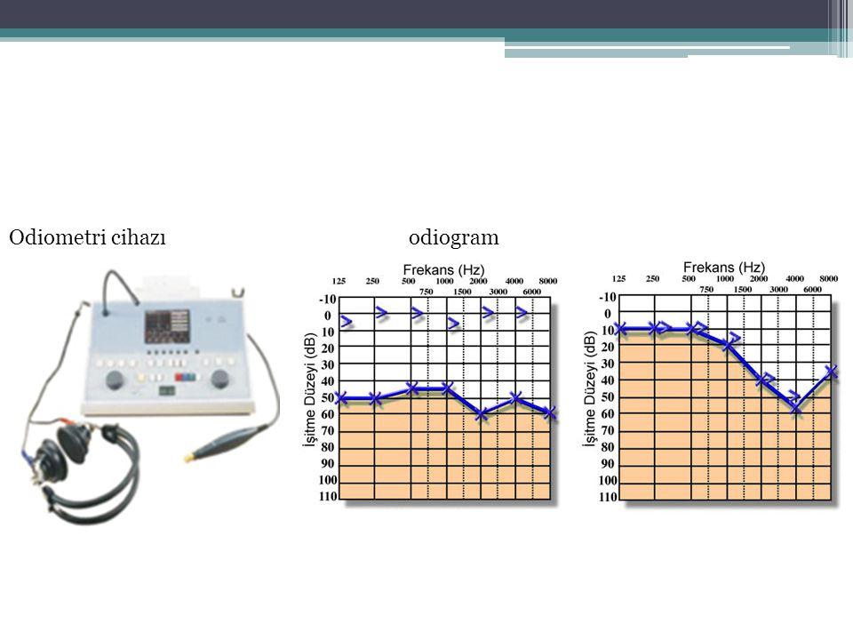 Odiometri cihazı odiogram