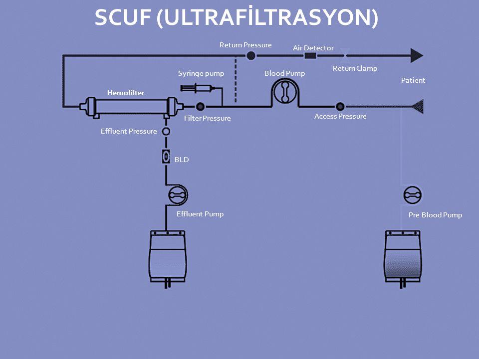 SCUF (ULTRAFİLTRASYON)