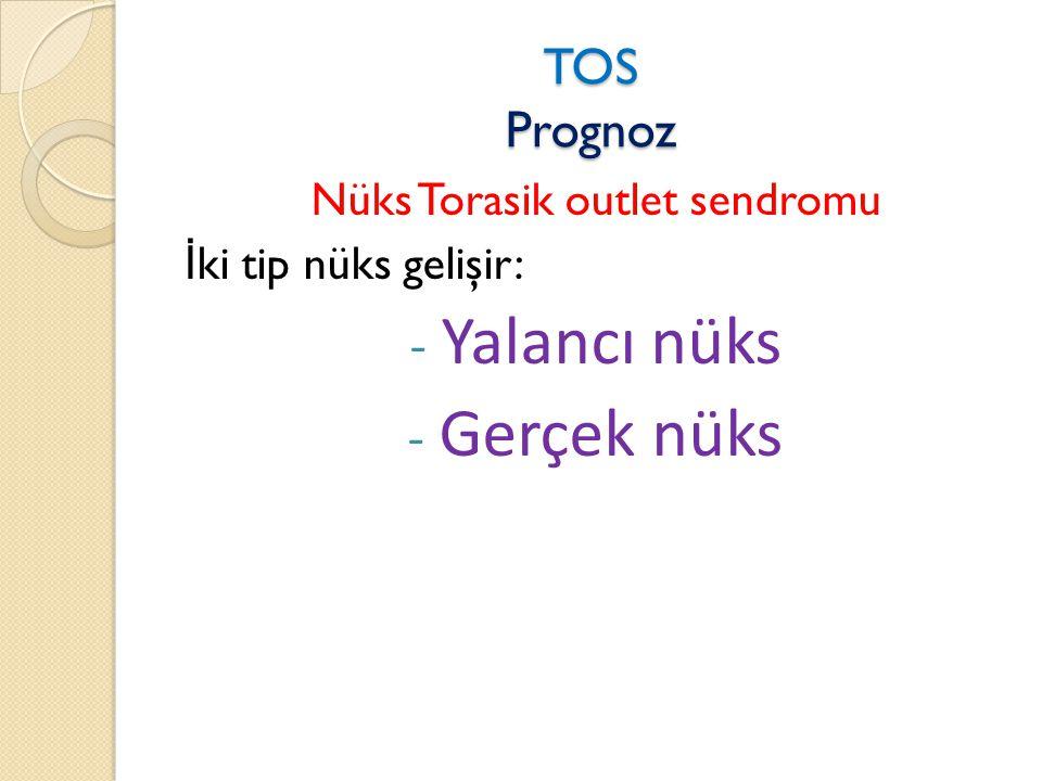 Nüks Torasik outlet sendromu