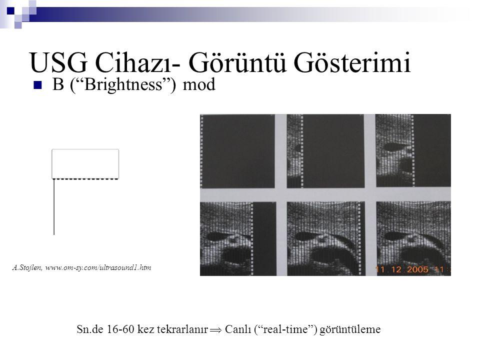 USG Cihazı- Görüntü Gösterimi
