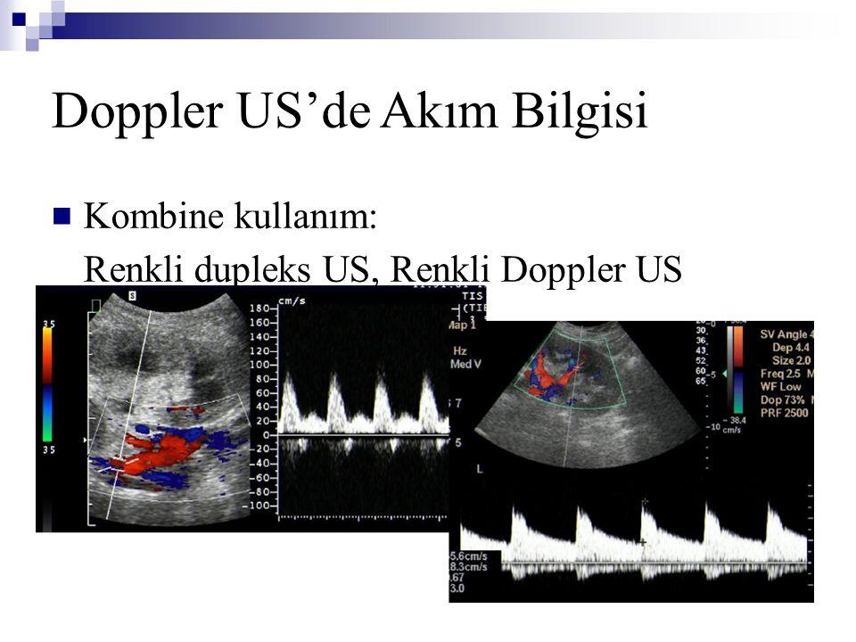 Doppler US'de Akım Bilgisi