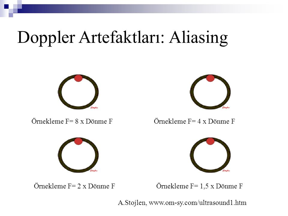 Doppler Artefaktları: Aliasing