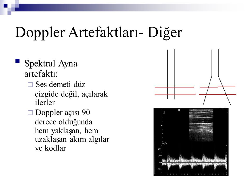 Doppler Artefaktları- Diğer