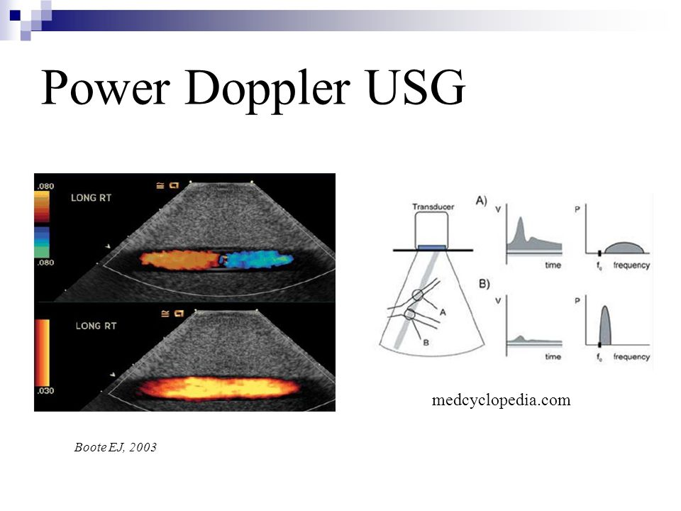 Power Doppler USG medcyclopedia.com Boote EJ, 2003