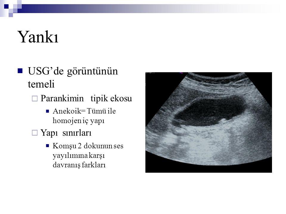 Yankı USG'de görüntünün temeli tipik ekosu sınırları 