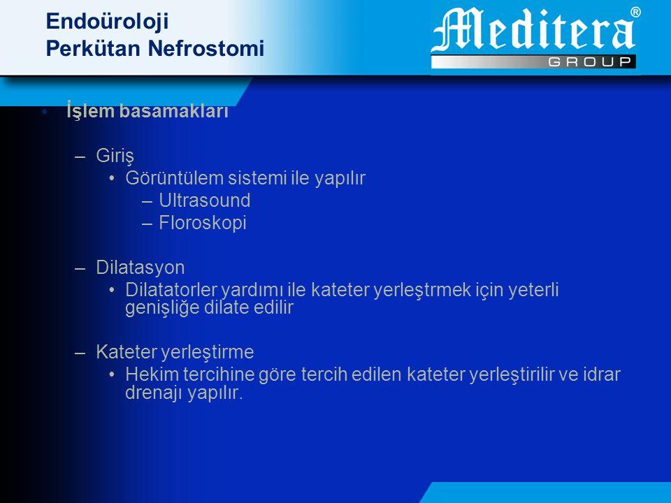 Endoüroloji Perkütan Nefrostomi