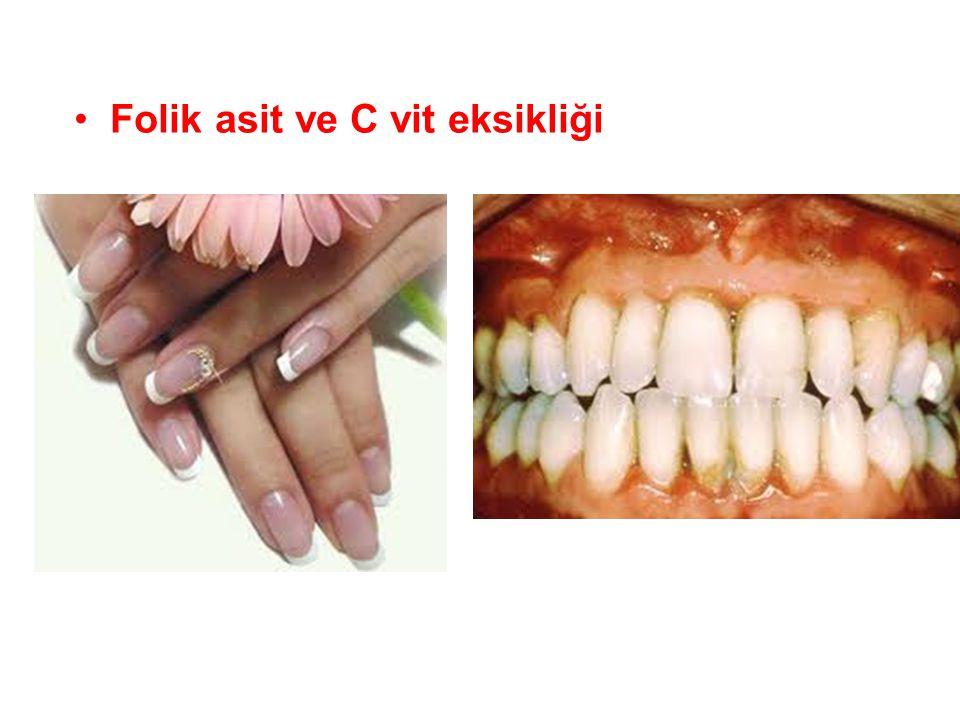 Folik asit ve C vit eksikliği