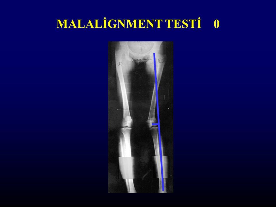 MALALİGNMENT TESTİ 0