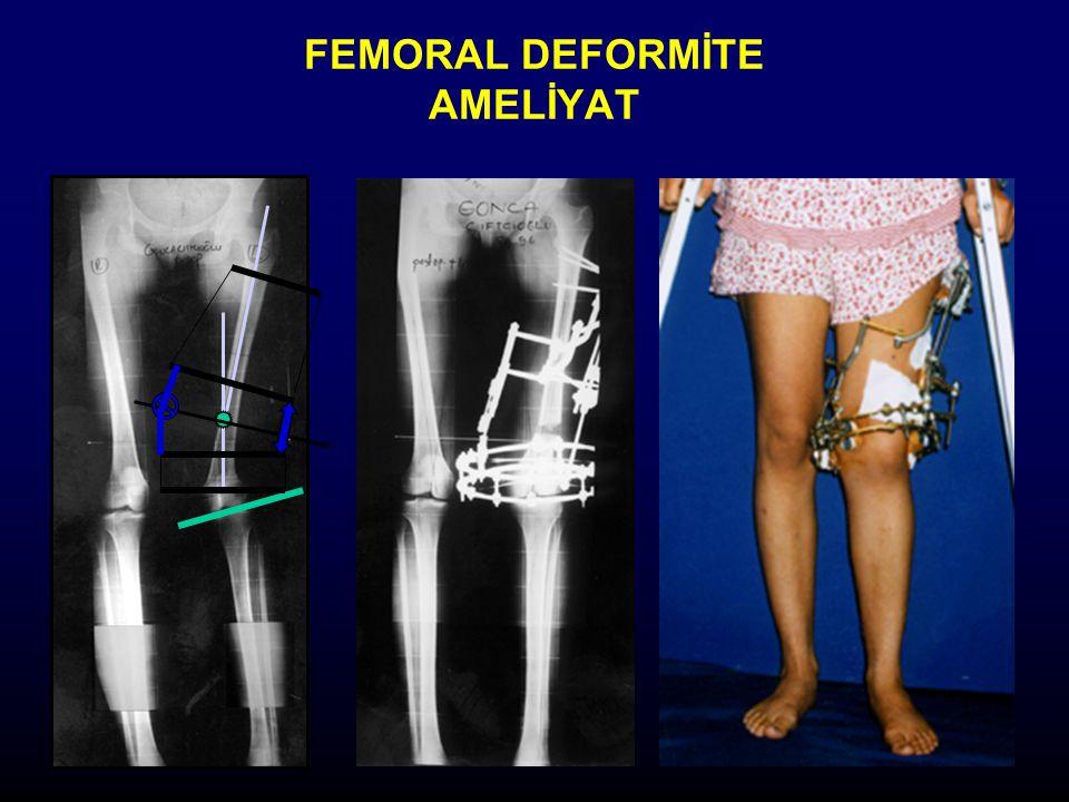 FEMORAL DEFORMİTE AMELİYAT