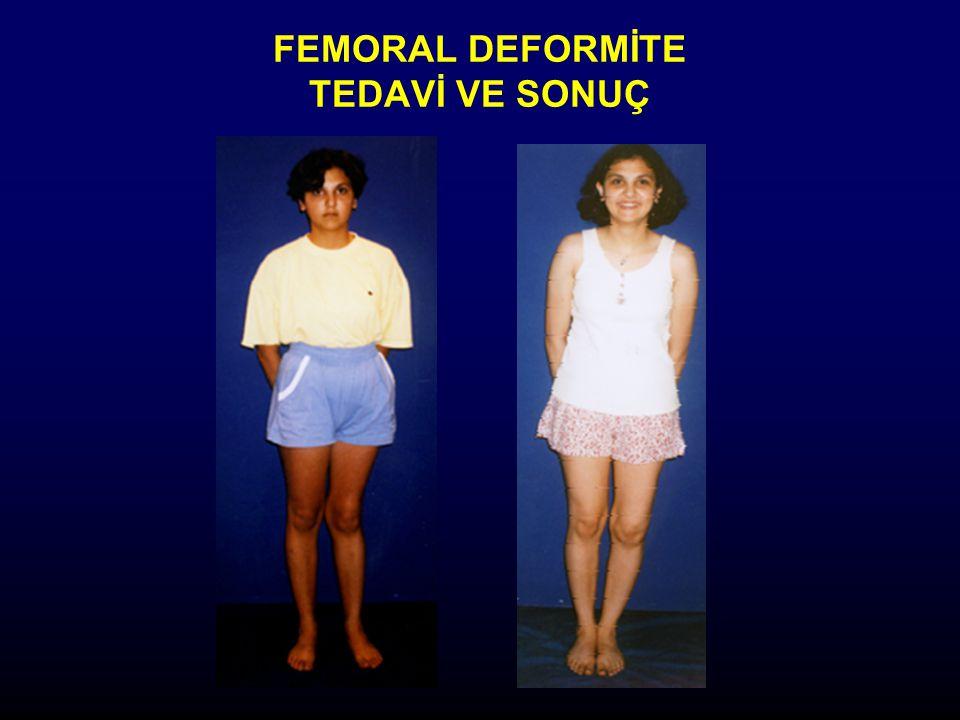 FEMORAL DEFORMİTE TEDAVİ VE SONUÇ