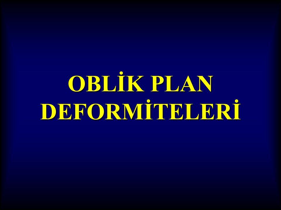 OBLİK PLAN DEFORMİTELERİ