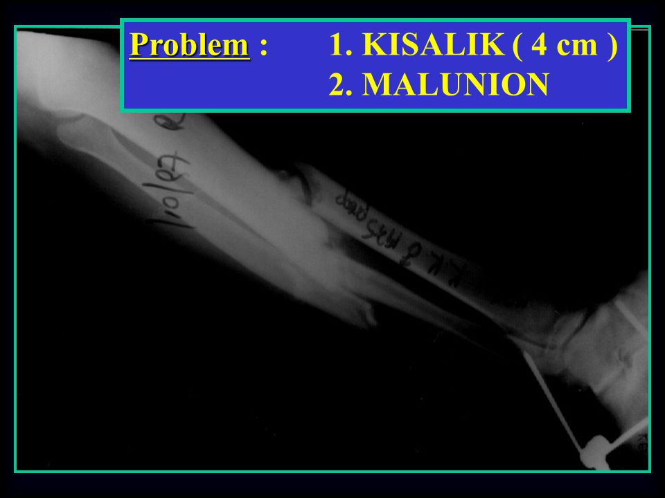 Problem : 1. KISALIK ( 4 cm ) 2. MALUNION