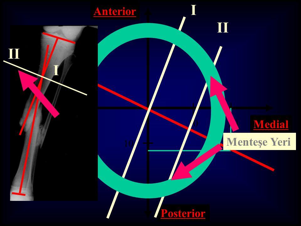 I Anterior II II I 10 20 Medial Lateral Menteşe Yeri 10 20 Posterior