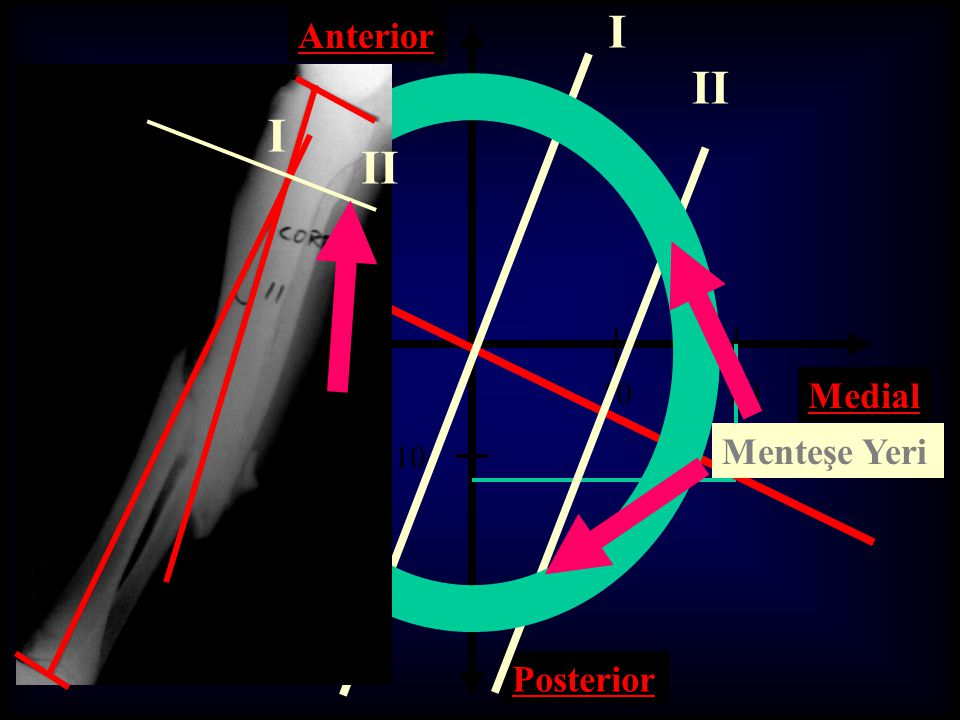 I Anterior II I II 10 20 Medial Lateral Menteşe Yeri 10 20 Posterior