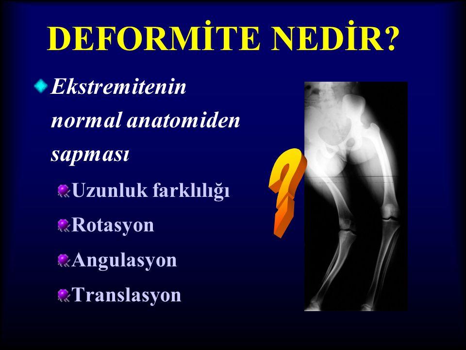 DEFORMİTE NEDİR Ekstremitenin normal anatomiden sapması