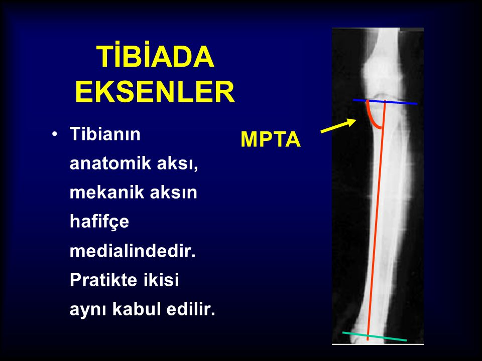 MPTA TİBİADA EKSENLER. Tibianın anatomik aksı, mekanik aksın hafifçe medialindedir.