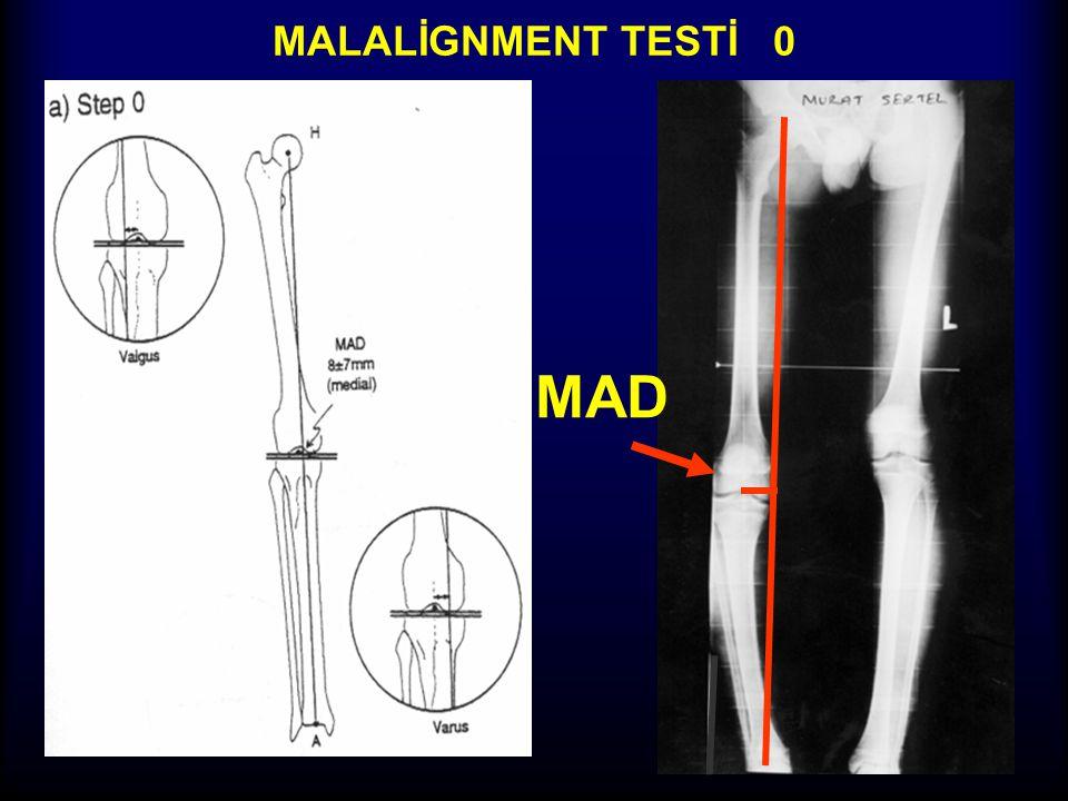 MALALİGNMENT TESTİ 0 MAD