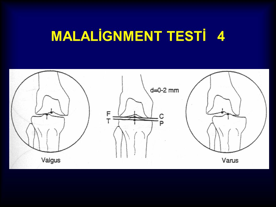 MALALİGNMENT TESTİ 4
