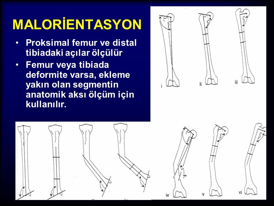 MALORİENTASYON Proksimal femur ve distal tibiadaki açılar ölçülür