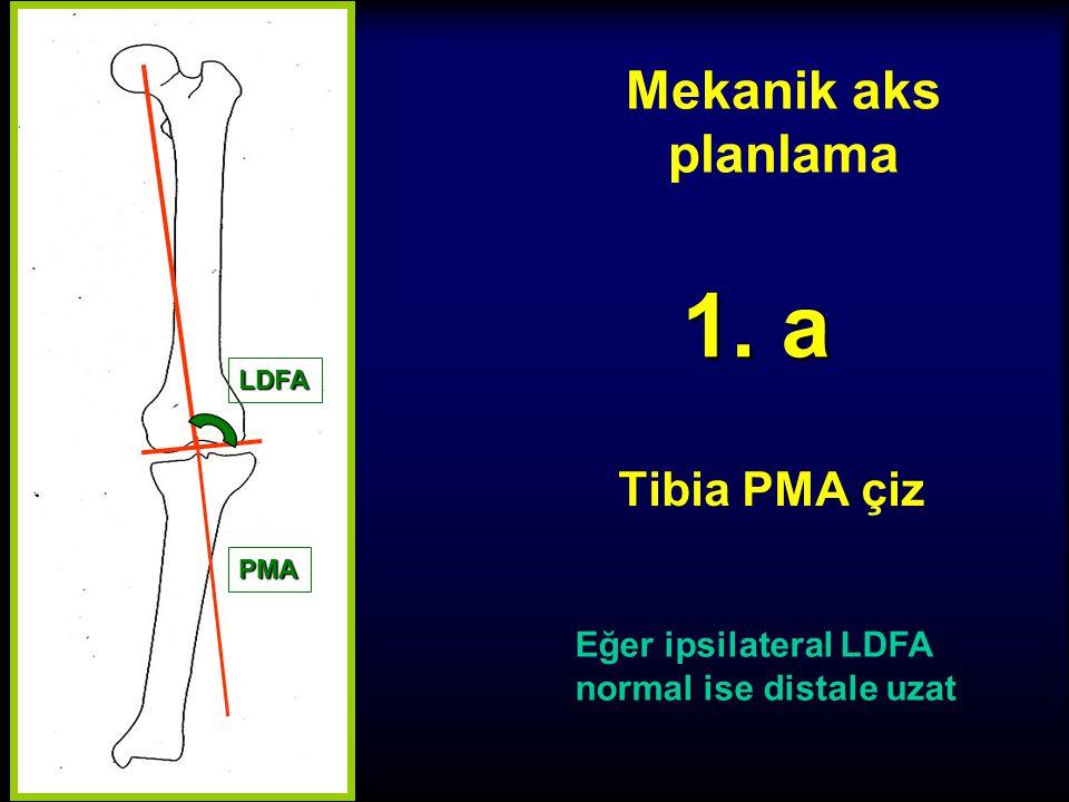 1. a Mekanik aks planlama Tibia PMA çiz