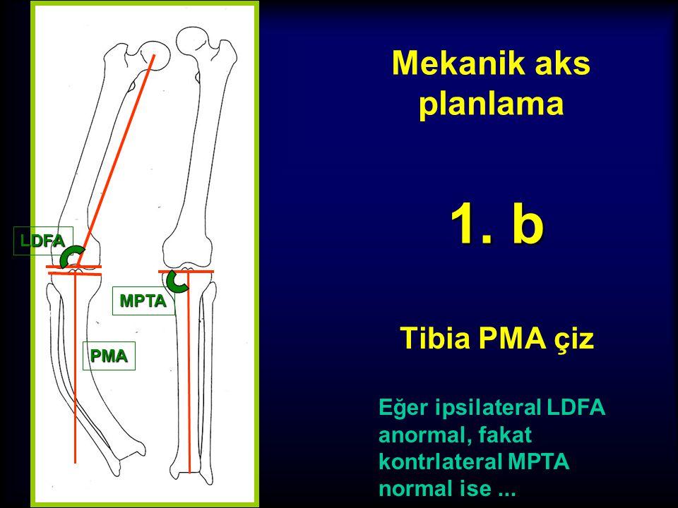 1. b Mekanik aks planlama Tibia PMA çiz