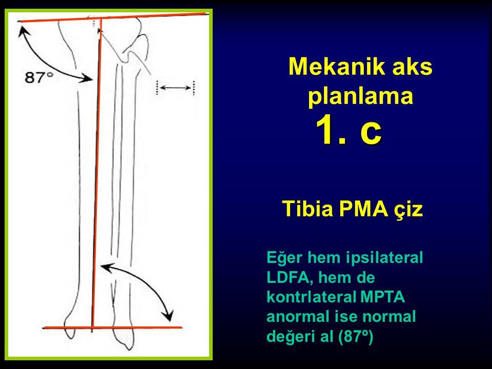 1. c Mekanik aks planlama Tibia PMA çiz