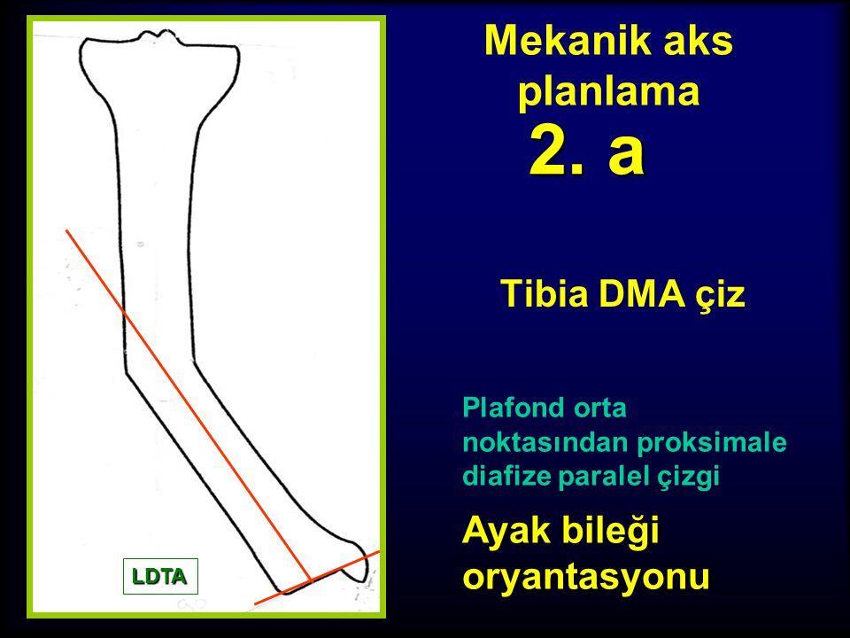 2. a Mekanik aks planlama Tibia DMA çiz Ayak bileği oryantasyonu
