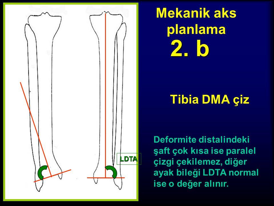 2. b Mekanik aks planlama Tibia DMA çiz