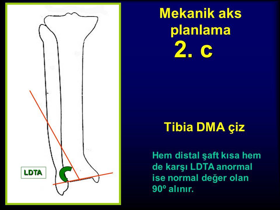 2. c Mekanik aks planlama Tibia DMA çiz