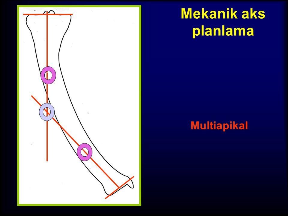 Mekanik aks planlama Multiapikal