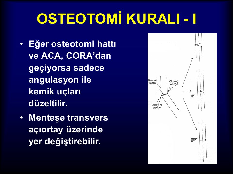 OSTEOTOMİ KURALI - I Eğer osteotomi hattı ve ACA, CORA'dan geçiyorsa sadece angulasyon ile kemik uçları düzeltilir.