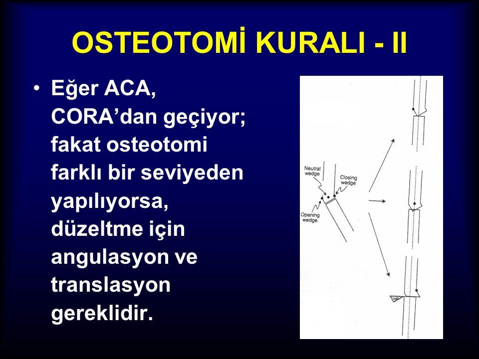 OSTEOTOMİ KURALI - II